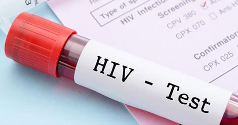 Em Mocambique, pelo menos 13% da populacao vive com HIV/SIDA